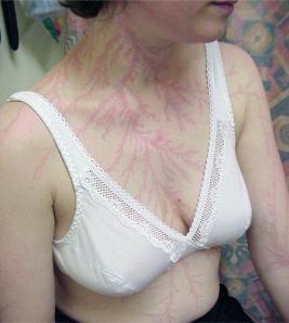 Lichtenberg Figure - Lighting Scars on Neck