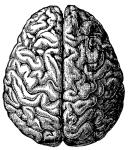 1602 brain 1
