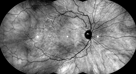 1604 vision