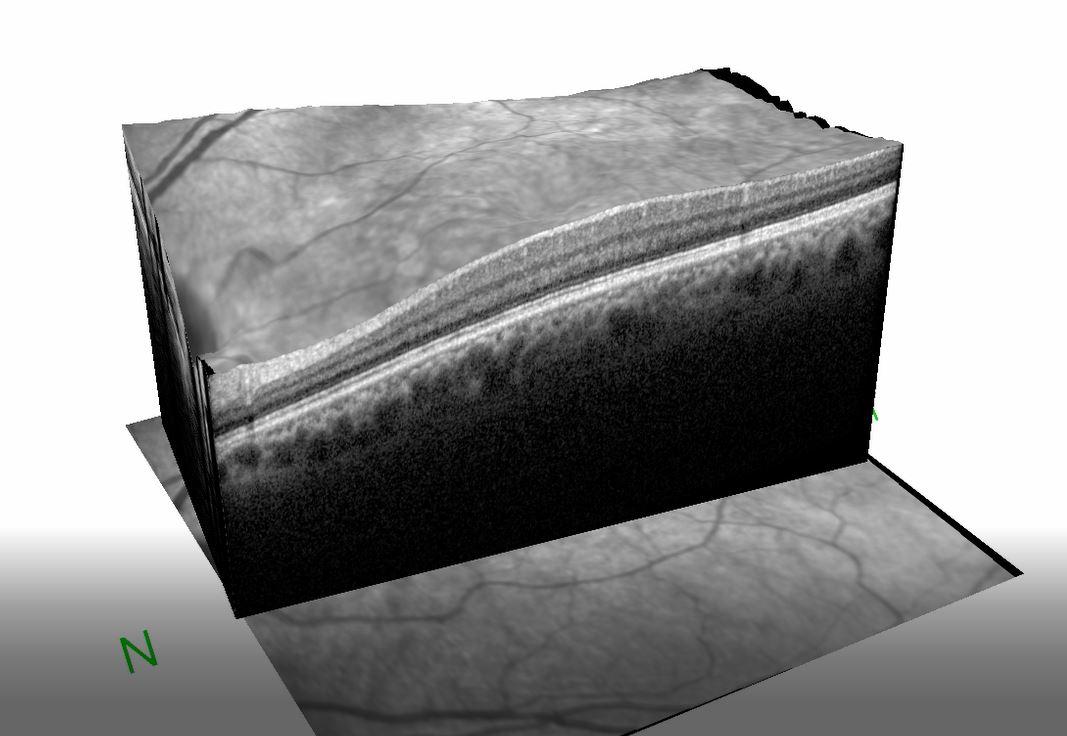 1801 eye imaging