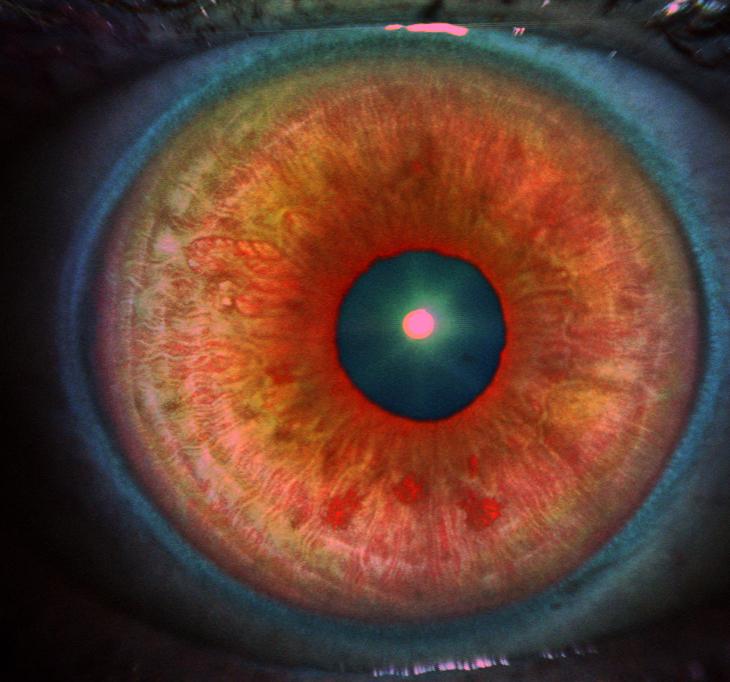 1904 iris scan infrared